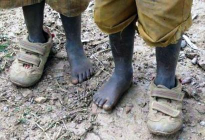 ricchezza-e-povertà